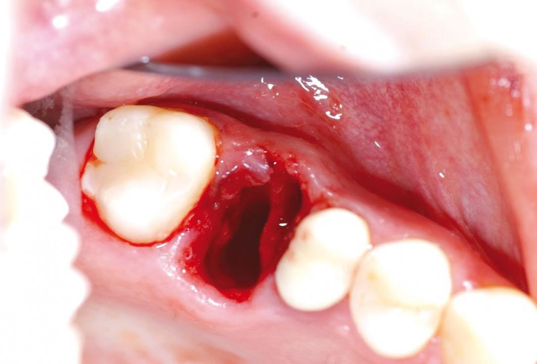 Socket preservation with permamem® - Dr. R. Rannula