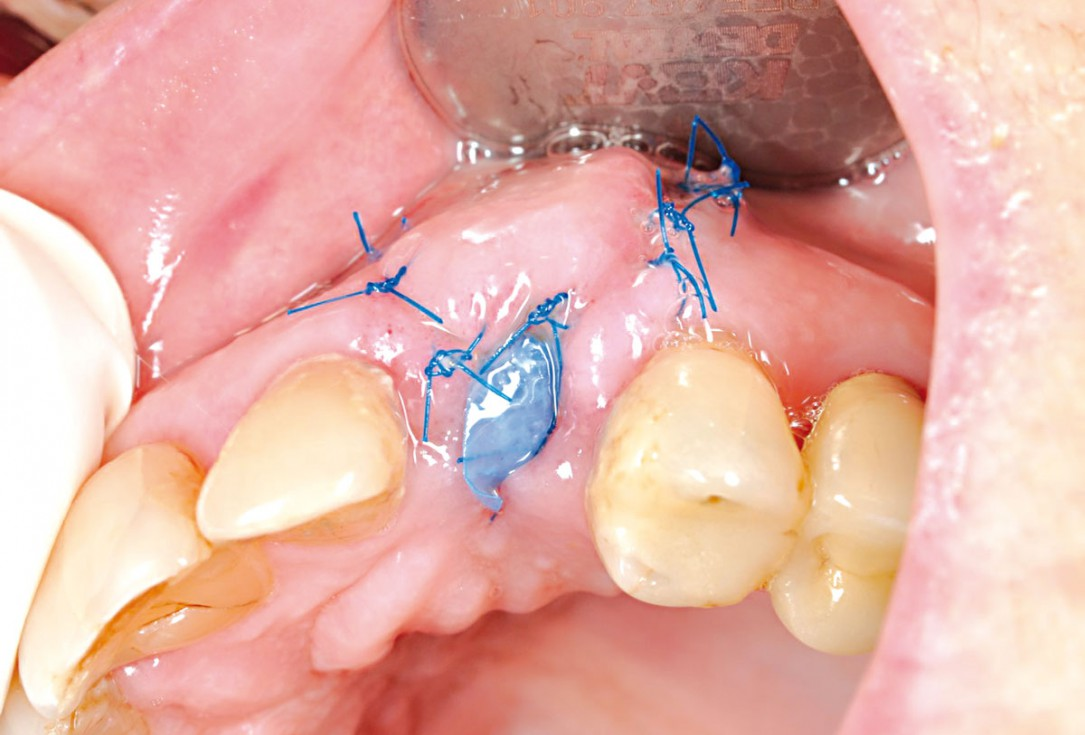 Socket preservation and reconstruction of the buccal wall using permamem® and cerabone® - Dr. M. Steigmann