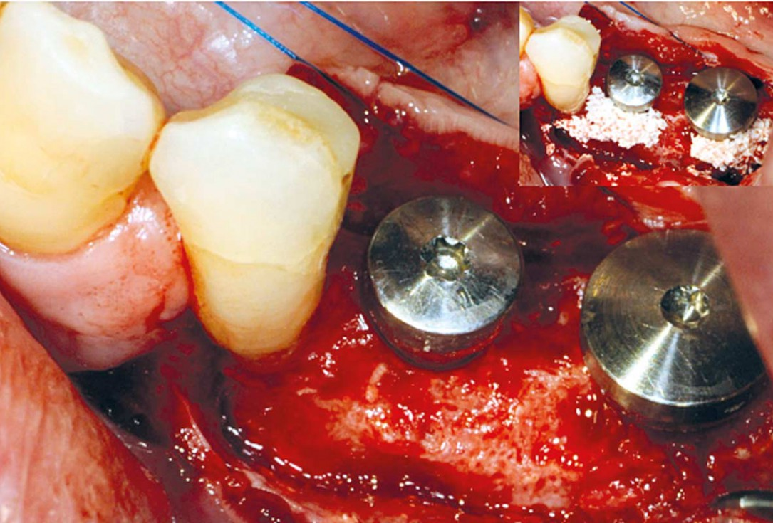 Augmentation of an atrophic ridge - Dr. Reto Morger