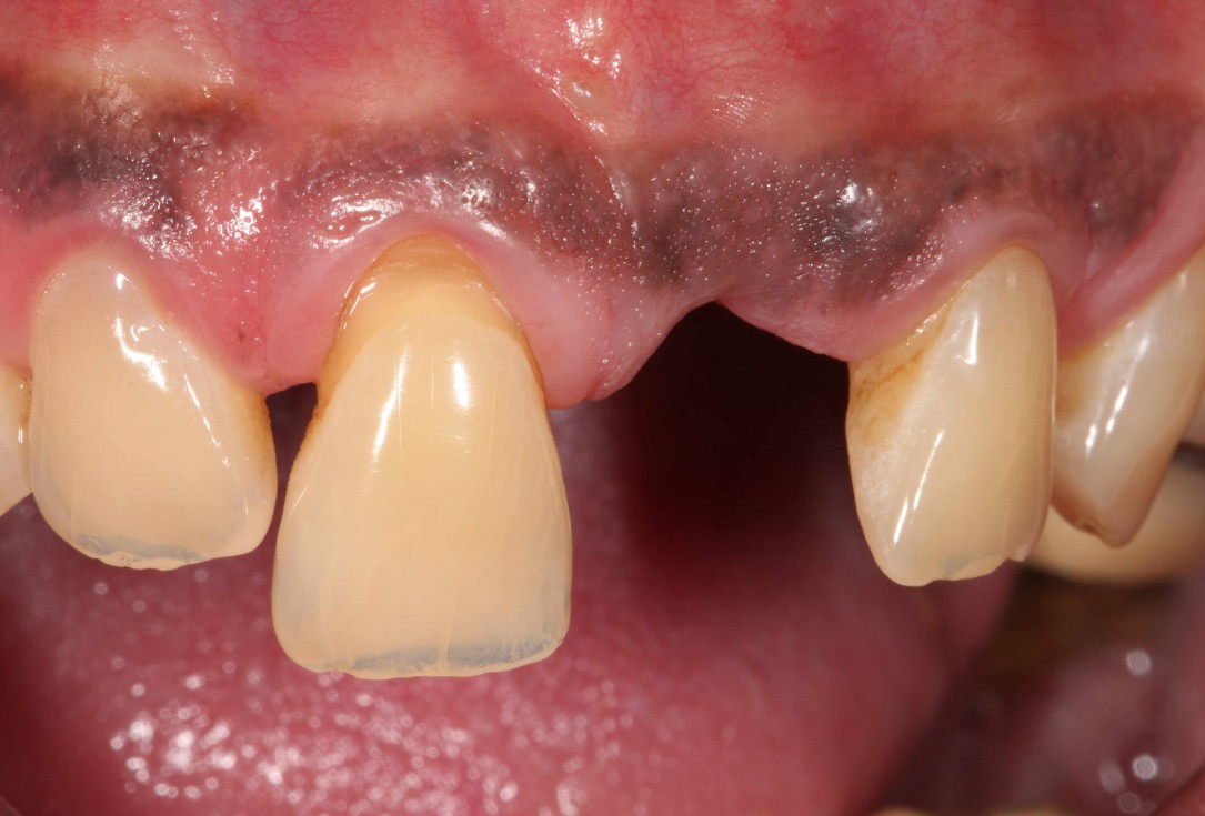 GBR with cerabone® and Jason® membrane in the front tooth region - Dr. H. Maghaireh