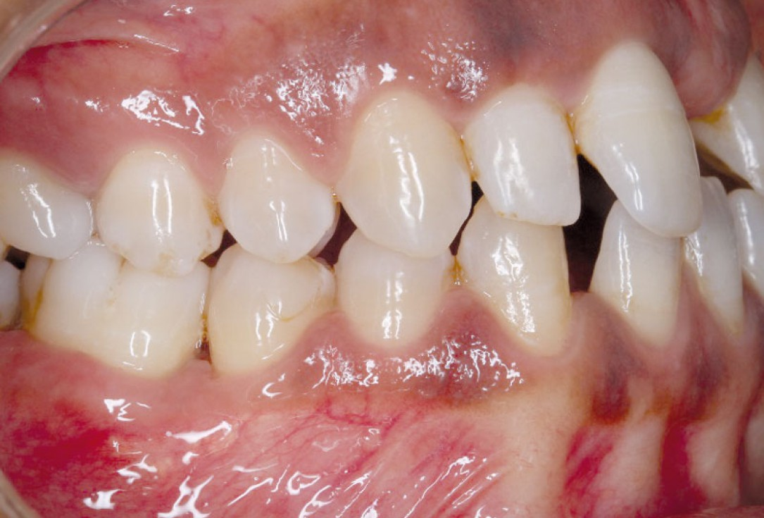 Regeneration at LR6 with cerabone® and collprotect® membrane using simple papilla preservation technique-5