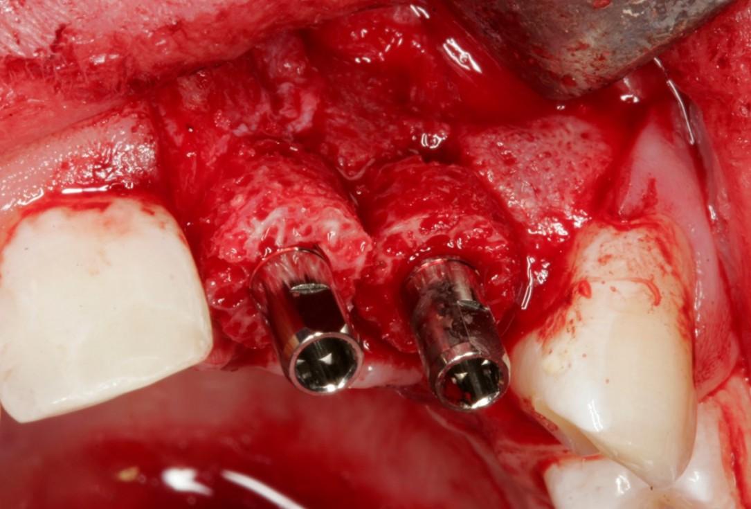 Bone augmentation in the aesthetic zone with maxgraft® bonering and L-PRF™ - Drs. B. Giesenhagen, O. Yüksel, A. Seyfer