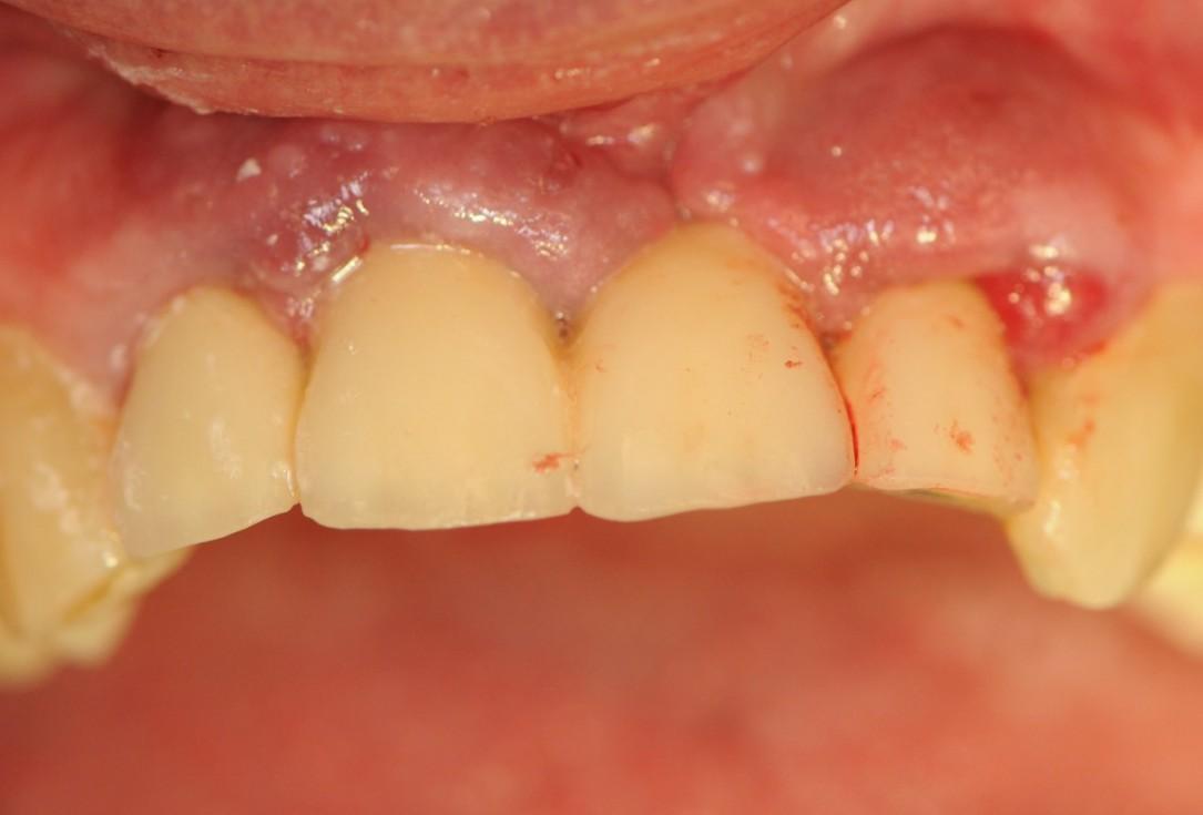 Long-term case: socket preservation and bone augmentation with two maxgraft® bonering - Dr. B. Giesenhagen