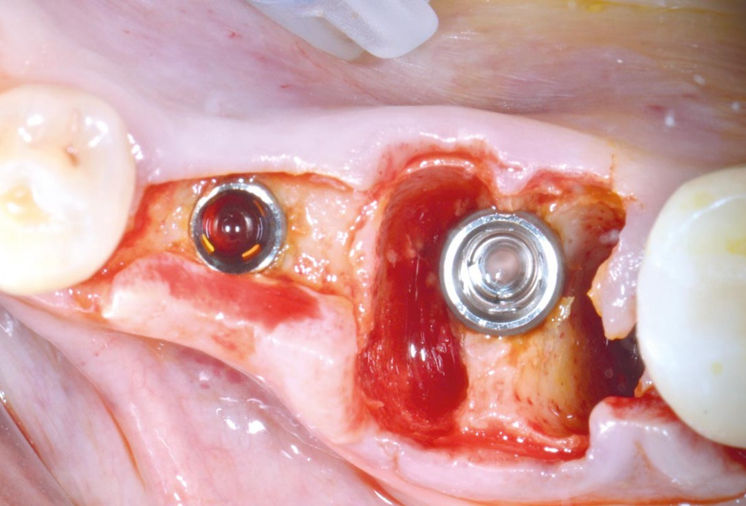 Immediate implantation with maxresorb® - Dr. M. Frosecchi