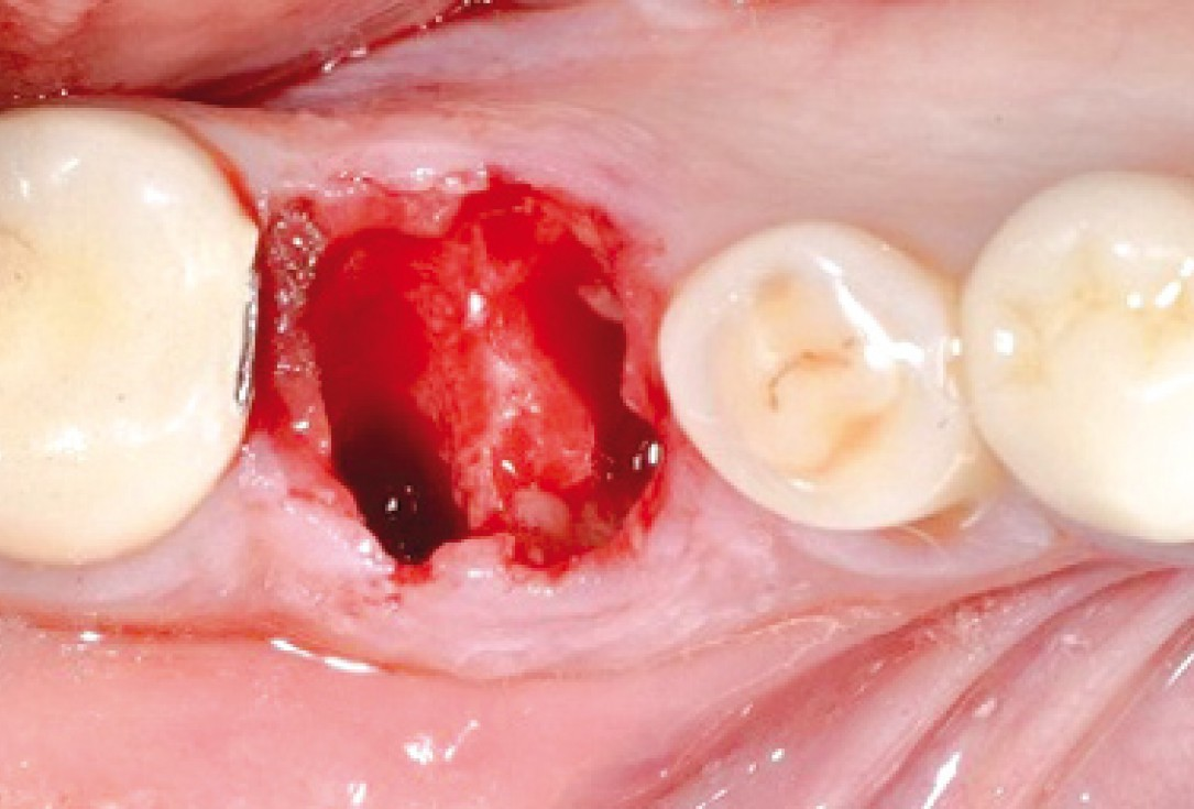 Socket seal surgery with mucoderm® - Dr. M. Frosecchi