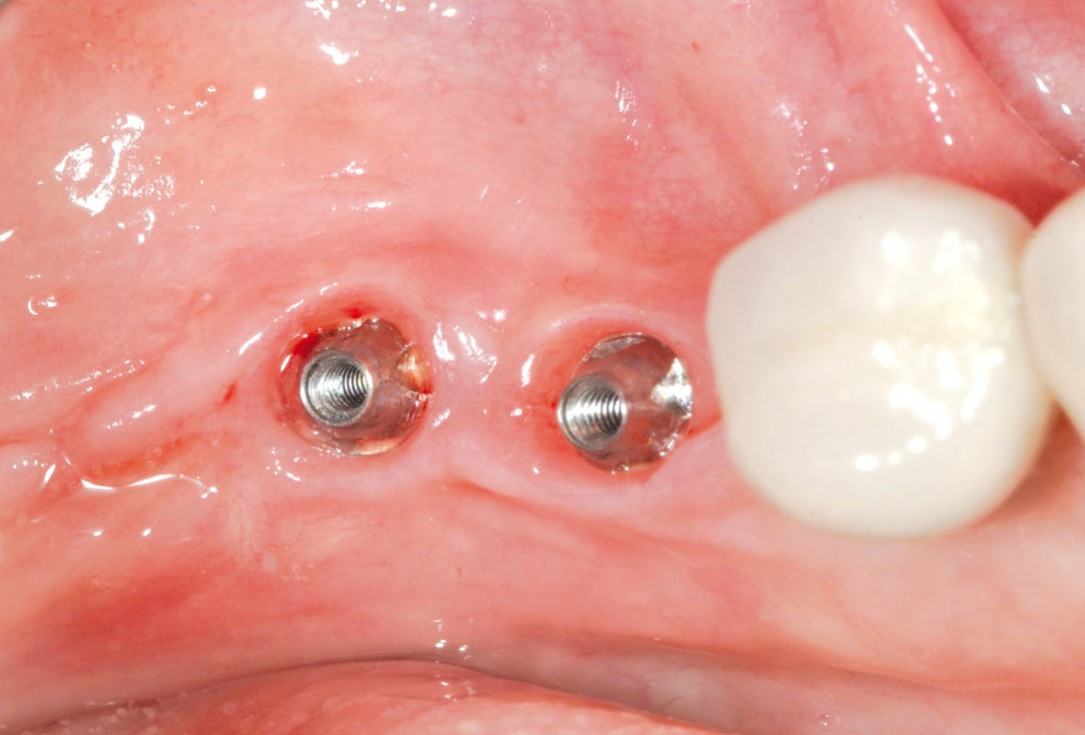 Peri-implant soft tissue thickening with mucoderm® - Dr. F. Rojas-Vizcaya