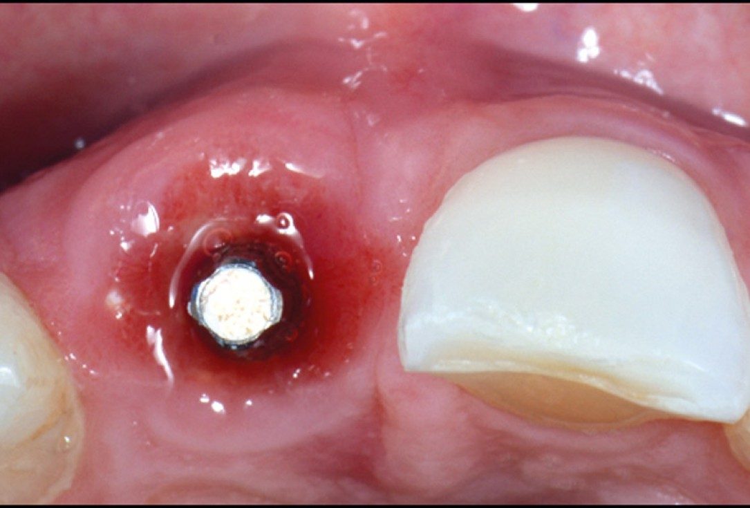 cerabone® and mucoderm® for immediacy in esthetic zone -Dr. M Motta
