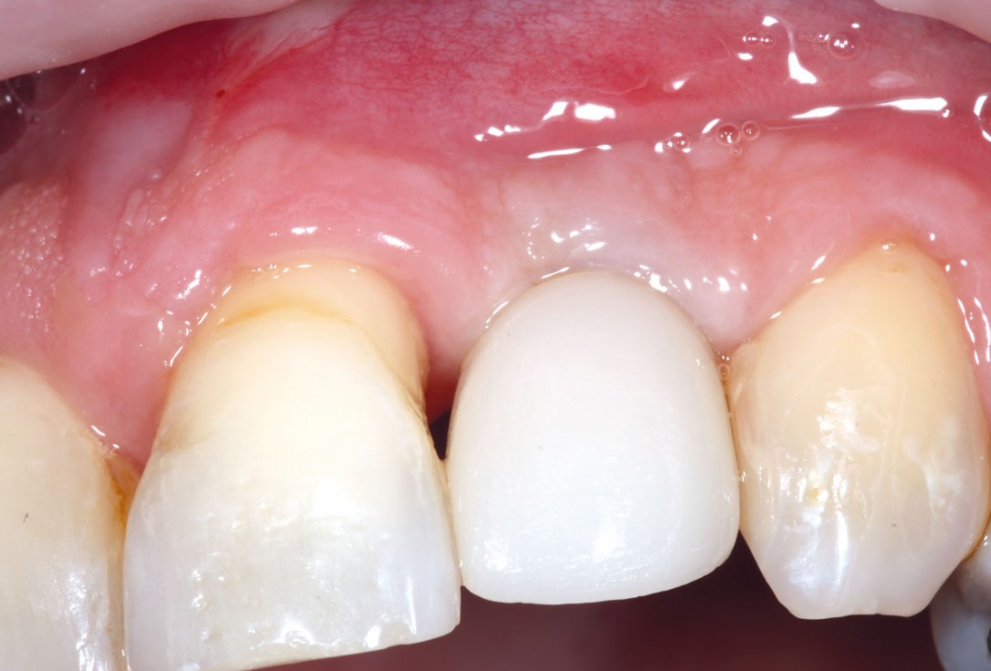 Restoration of single tooth gap in aesthetic zone with maxgraft® bonering - Dr. R. Cutts