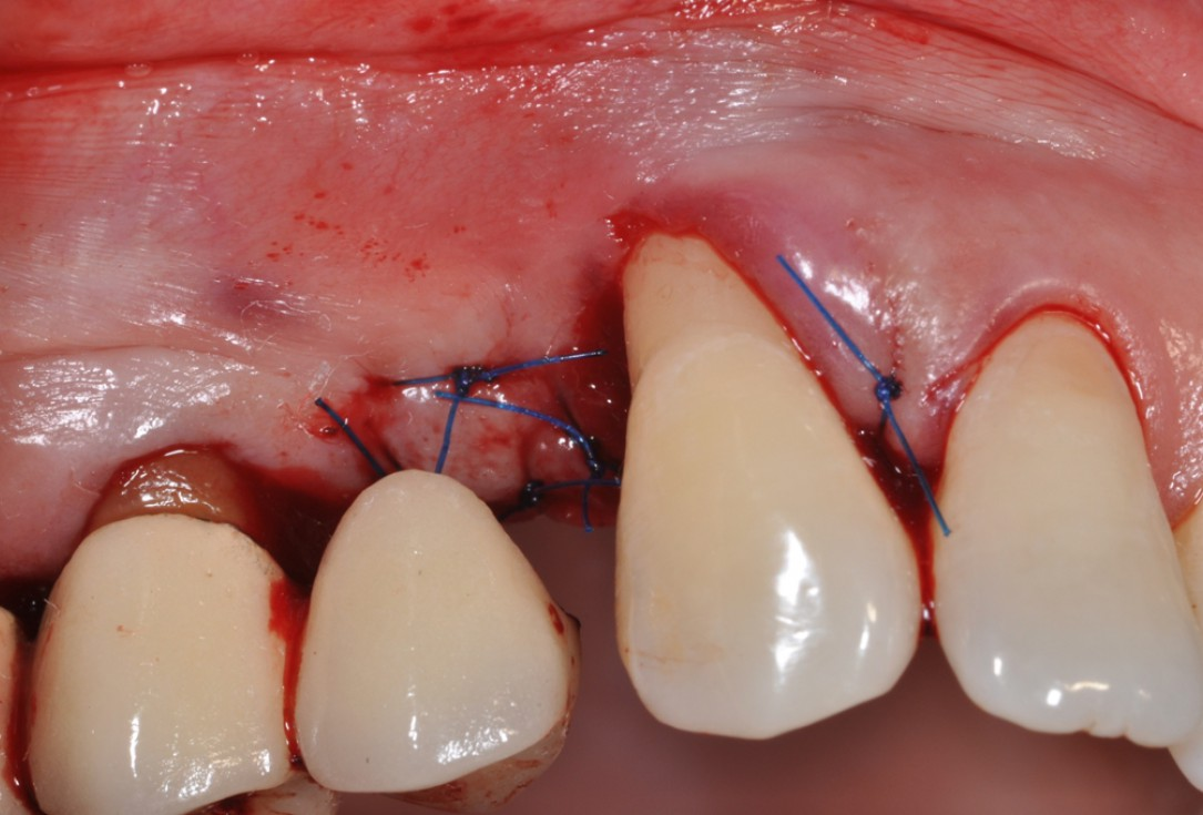 Intrabony defect treated using collprotect® membrane & cerabone® (1) - Cosgarea & Sculean