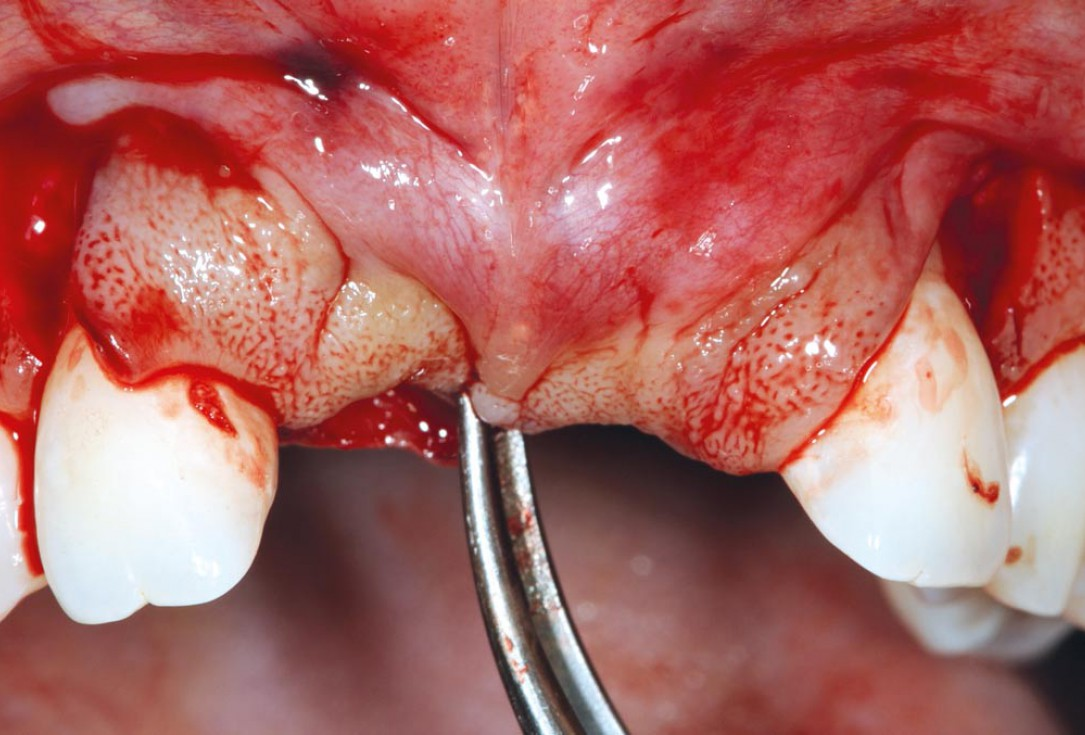 Bone augmentation in aesthetic zone with maxgraft® bonering - Dr. A. Patel
