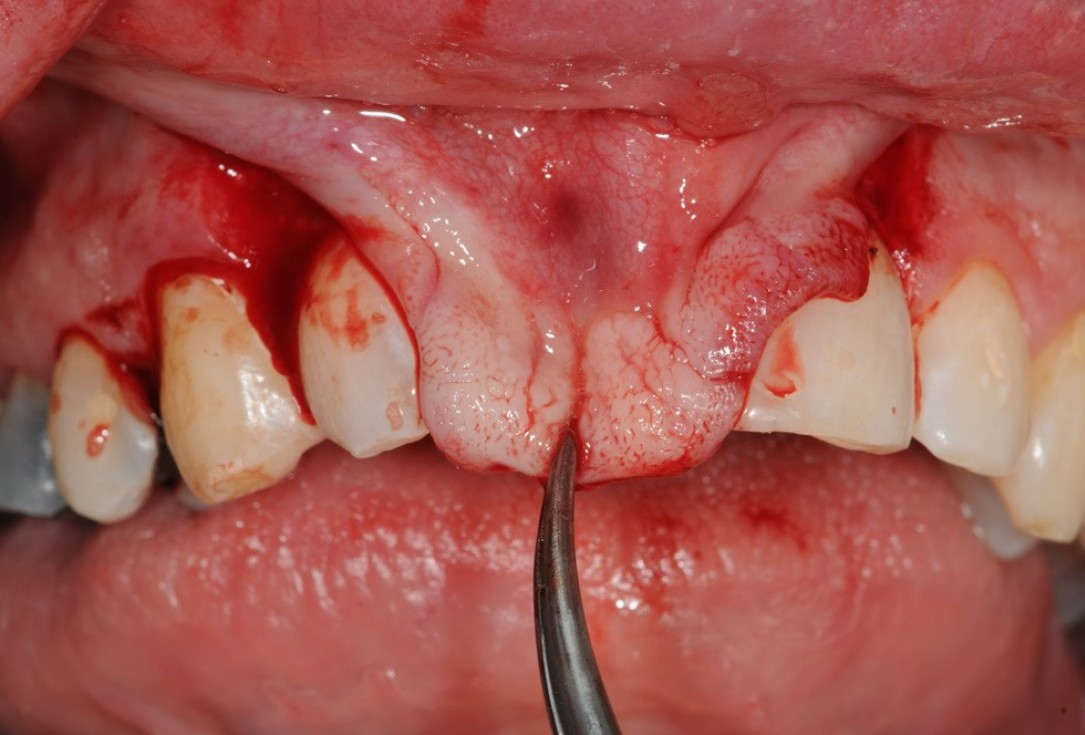 Restoration of buccal layer with maxgraft® bonering - A. Patel