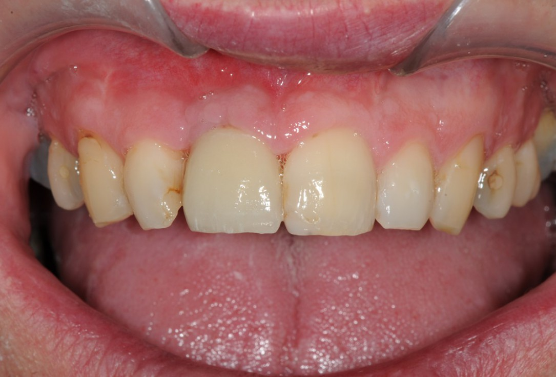 Restoration of buccal layer with maxgraft® bonering -Amit Patel