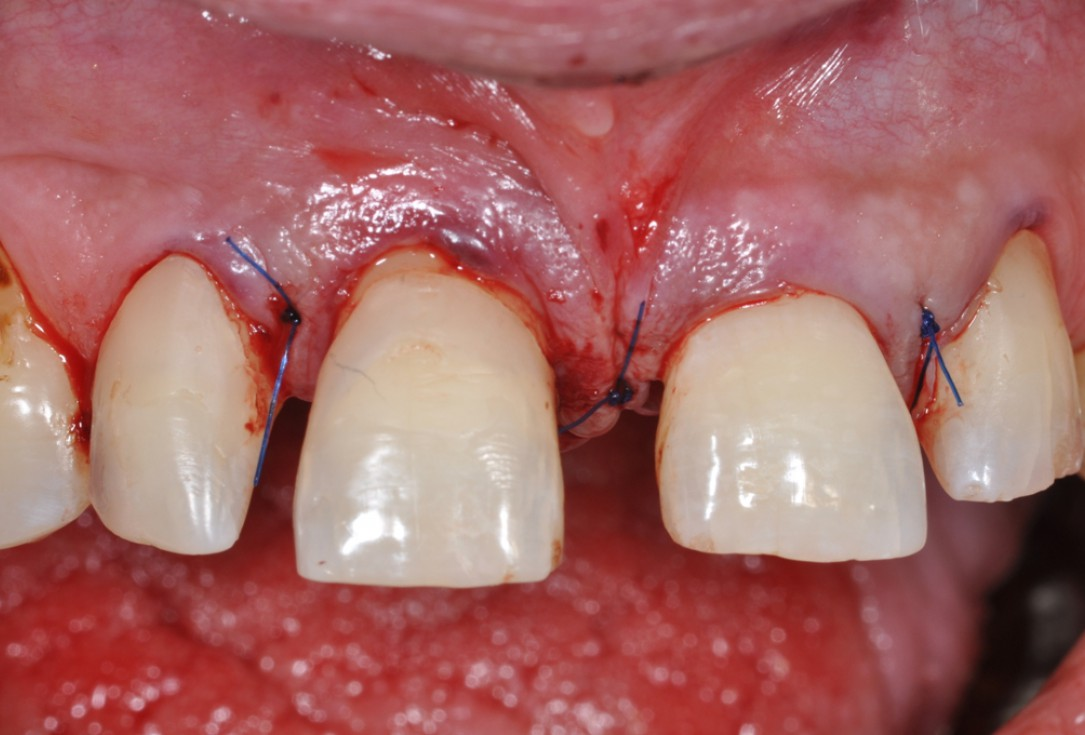 Intrabony defect treated using collprotect® membrane & cerabone® (2) - Cosgarea & Sculean