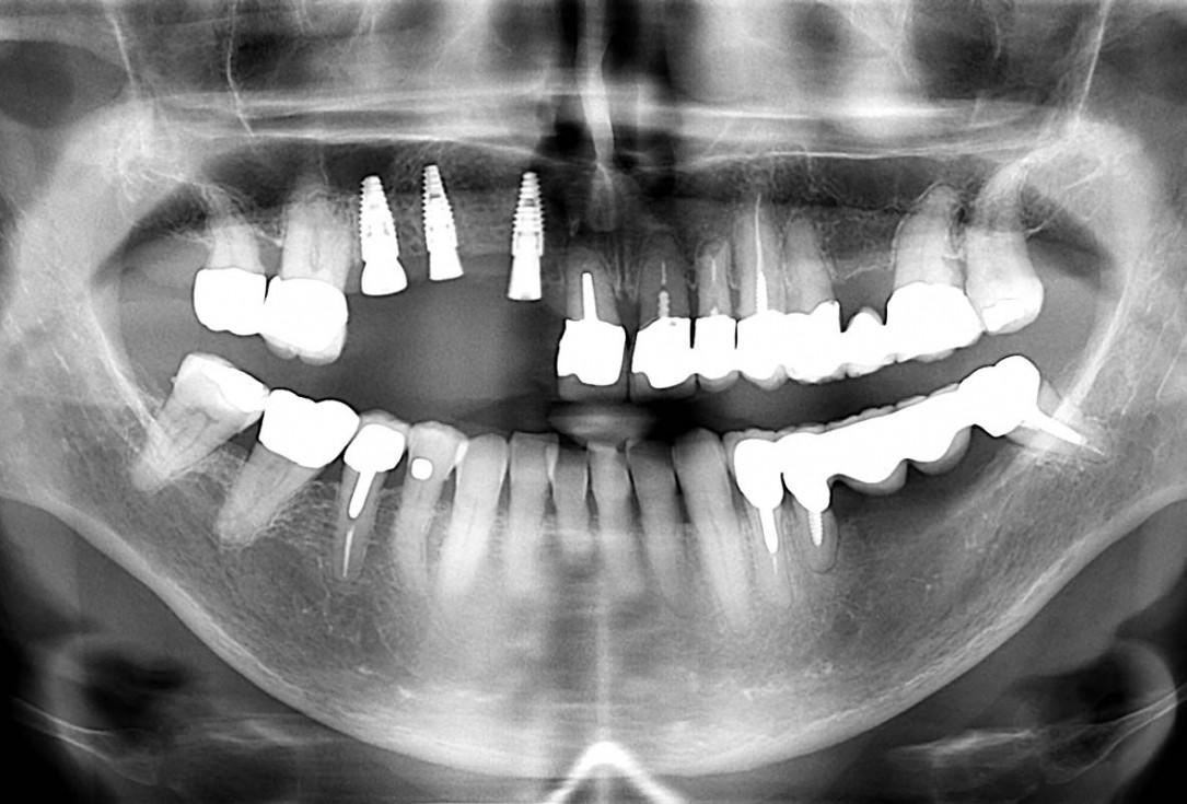 Smile rehabilitation in the anterior maxilla with maxgraft® bonebuilder - Dres. Dagba and Mourlaas