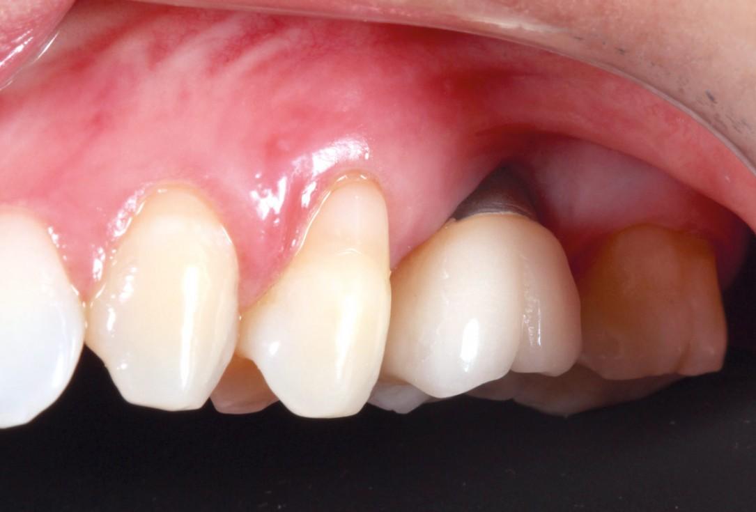 Soft tissue thickening with mucoderm® - Dr. G. de Deus