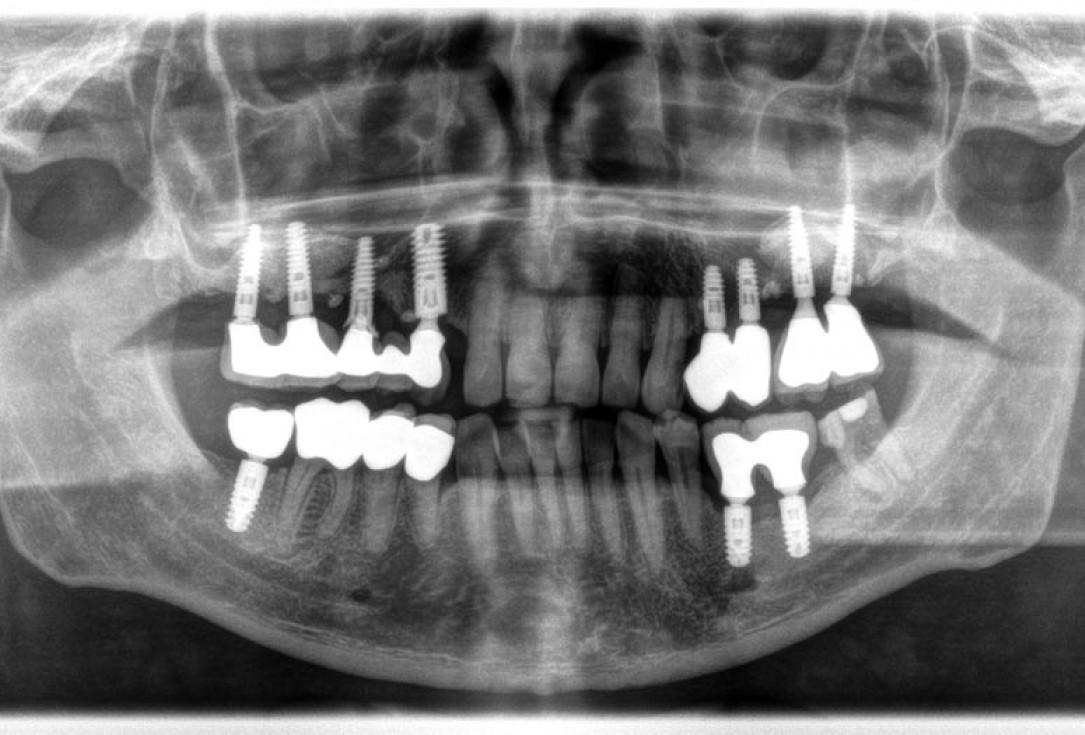 Periimplantitis treatment with maxgraft® bonering - Dr. B. Giesenhagen