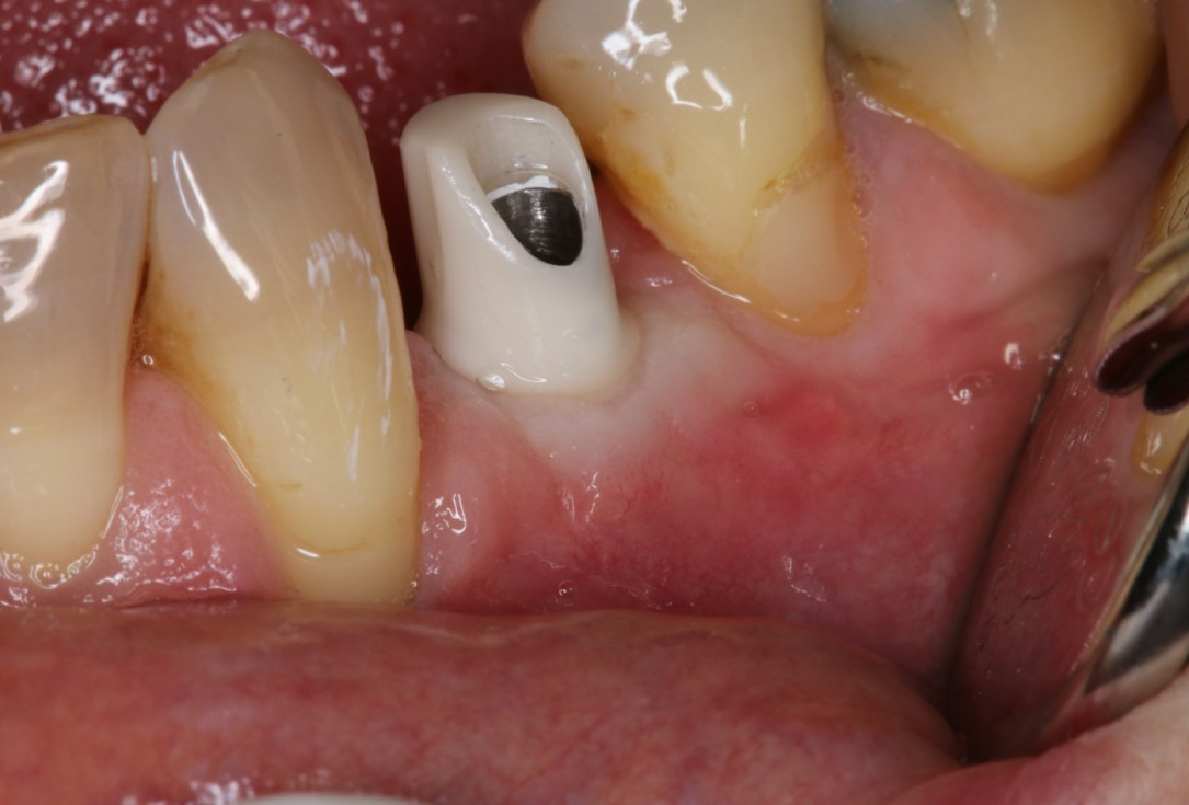 Augmentation of buccal and lingual bone lamella with maxgraft® bonering -Dr. B. Giesenhagen