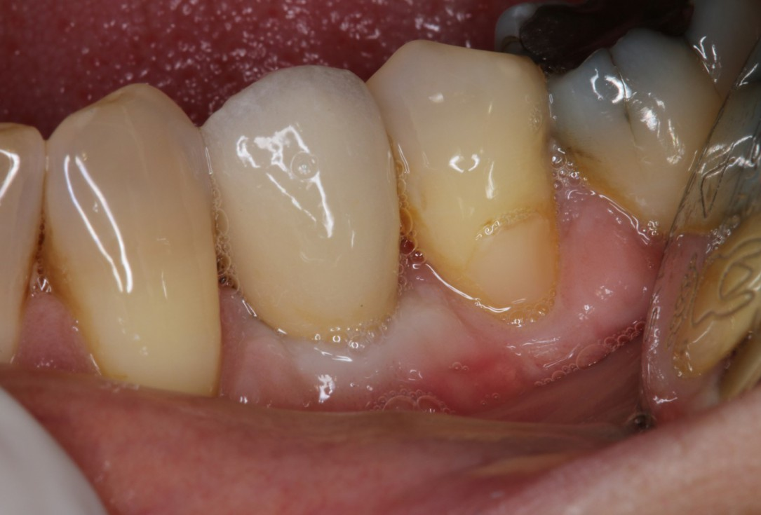 Augmentation of buccal and lingual bone lamella with maxgraft® bonering - Dr. B. Giesenhagen