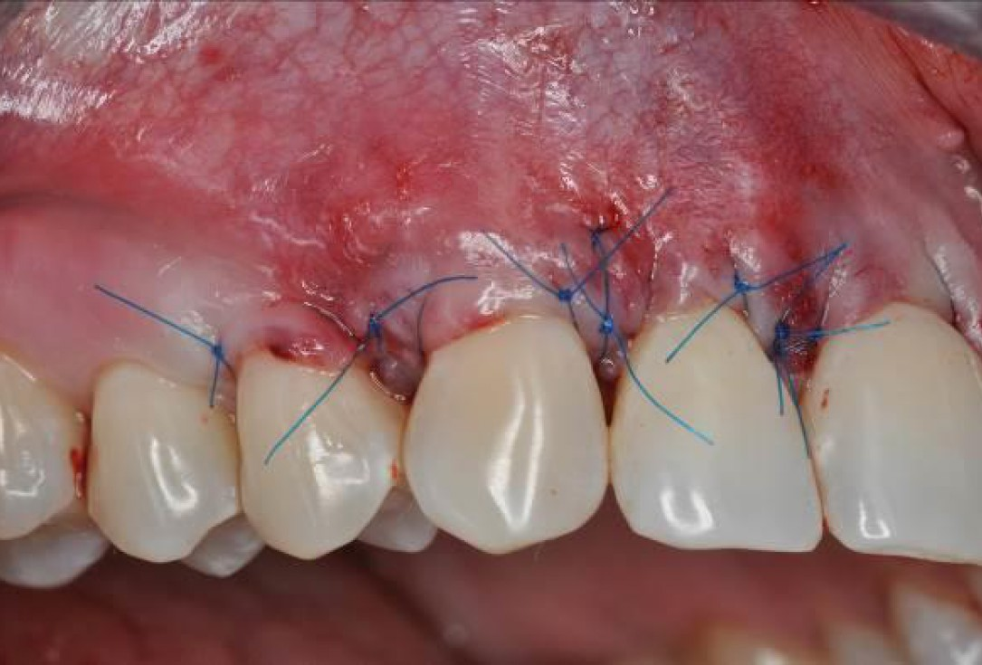 Multiple gingival recessions treated by MCAF in conjunction with mucoderm® and Straumann® Emdogain® - Hangyási