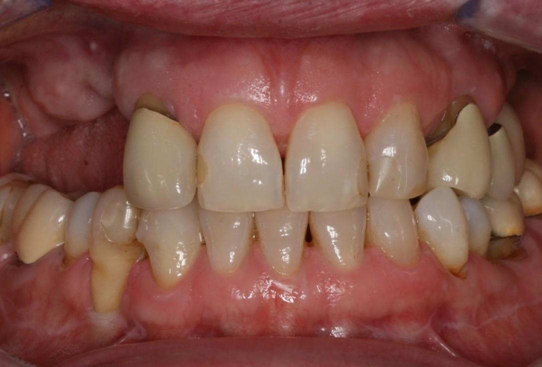 Advanced vertical augmentation in posterior maxilla with maxgraft® bonering - Dr. A. Isser
