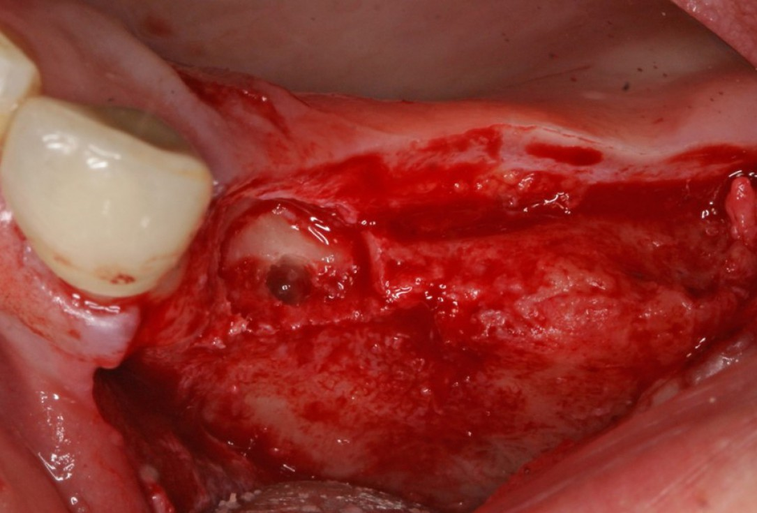 Advanced vertical augmentation in posterior maxilla with maxgraft® bonering - Dr. A. Isser