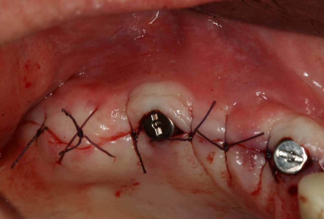 botiss maxresorb®, Jason fleece® and collprotect® membrane for sinus lift and simultaneous implantation - case by Dr. F. Kistler