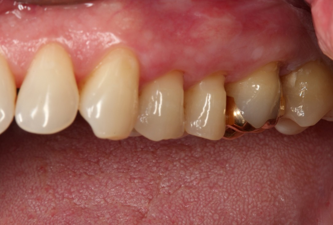Multiple gingival recessions treated by MCAT with mucoderm® and Straumann® Emdogain® (2) - Rathe