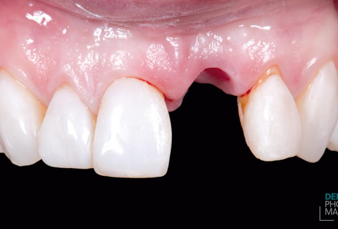 Guided bone ring procedure in aesthetic zone - Dr. K. Chmielewski & Dr. O. Yüksel