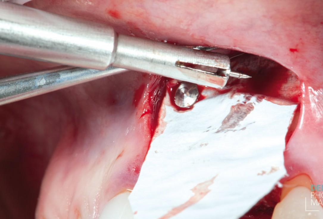 Guided bone ring procedure in aesthetic zone -Dr. K Chmielewski & Dr. O Yüksel