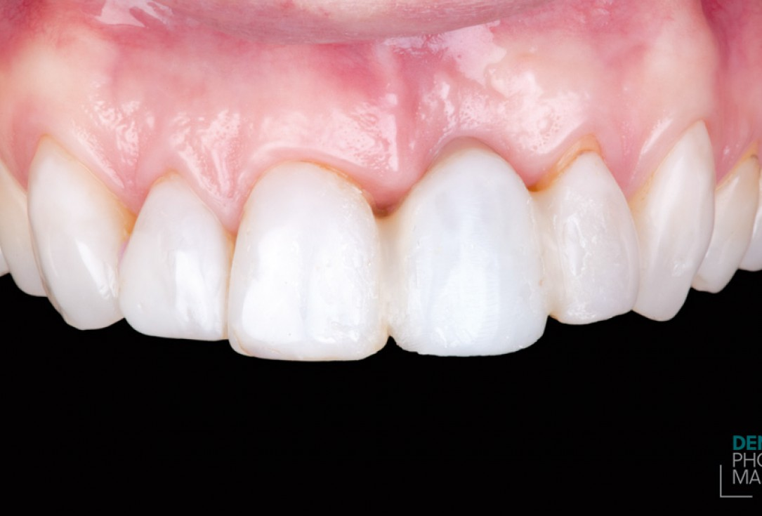 Guided bone ring procedure in aesthetic zone - Dr. K. Chmielewski & Dr. O. Yükse