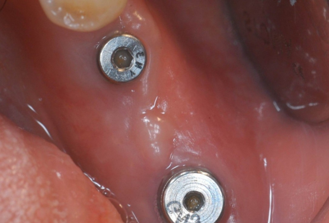 Ridge augmentation with cerabone® and Jason® membrane - Dr. M. Steigmann