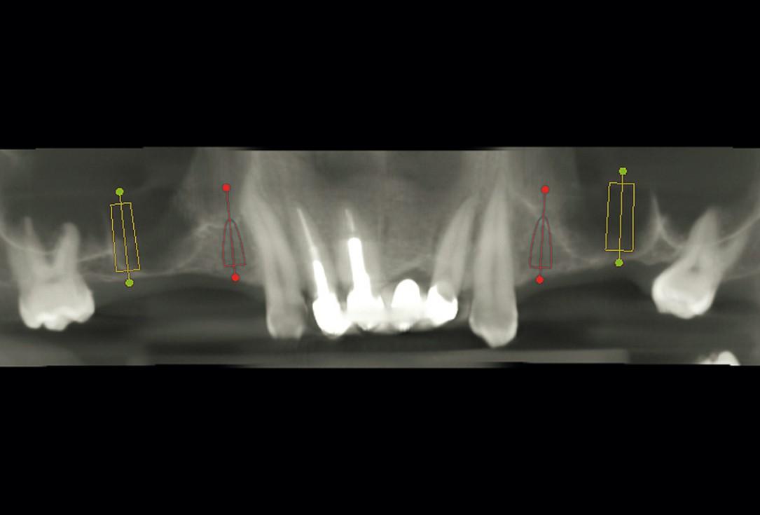 Sinus Floor Elevation with maxgraft® bonering and subcrestal implantation in an eggshell thin sinus - Dr. K. Chmielewski
