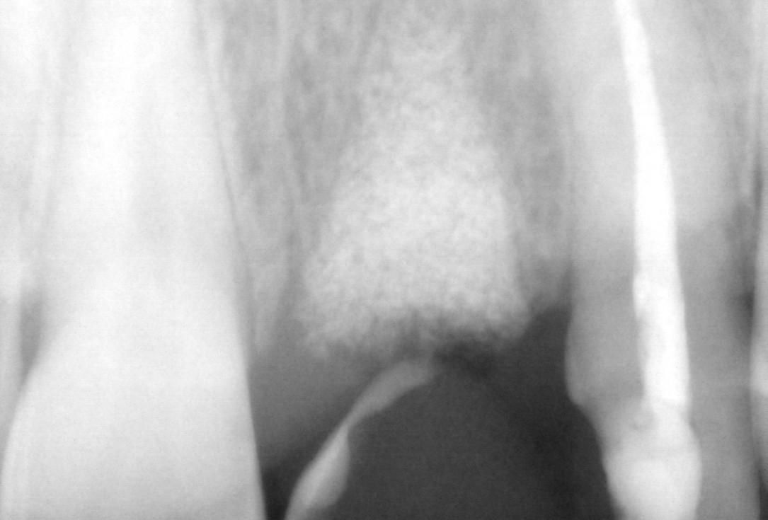 Socket preservation with cerabone® - Dr. Rahib Adi Nader
