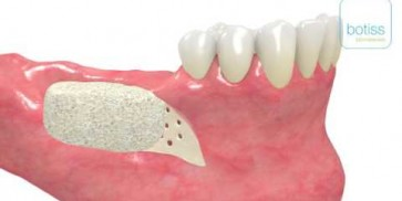 maxgraft® bonebuilder in the mandible including incisions by Dr Dr O Blume