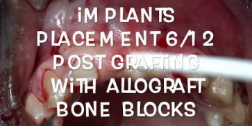 GBR surgery  after maxgraft® Allograft Bone Block - Surgery by Dr. H. Maghaireh