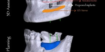 Bone augmentation in the mandible with maxgraft® bonebuilder - Surgery by Dr. Hassan Maghaireh