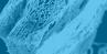 Jason® membrane - pericardium GBR/GTR membrane