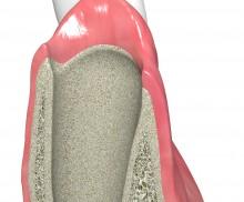 Immediate implantation