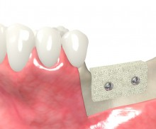 Block augmentation with maxgraft® blocks