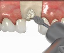 Bone ring technique