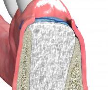 Ridge preservation with dPTFE membrane