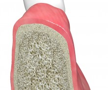 Socket seal technique with mucoderm®