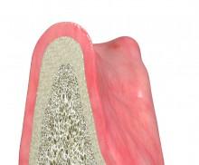 Guided Bone Regeneration